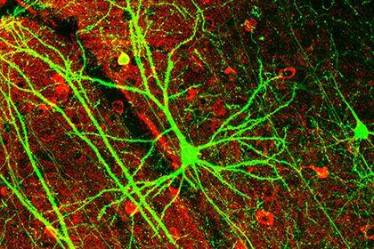 Впервые зафиксирована работа человеческого мозга после смерти http://mnogomerie.ru/2017/03/09/vpervye-zafiksirovana-rabota-chelovecheskogo-mozga-posle-smerti/  Канадские врачи сообщили о редком случае мозговой активности у умершего человека. С момента остановки сердца специалисты регистрировали продолжительные дельта-волны, которые обычно возникают при глубоком сне. Об этом сообщает Science Alert. Исследователи следили за функционированием мозга и других органов у четырех человек в…