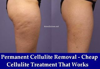 Permanent Cellulite Removal - Cheap Cellulite Treatment That Works http://bestfitnessbody.blogspot.com/