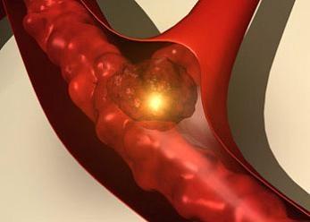 Maxilolarioja Blog: Antiagregación, Anticoagulación y Cirugía Oral