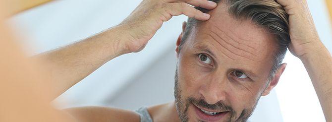 """A calvície é uma forma muito comum de queda de cabelo, caracterizada pela perda progressiva de pelos em determinadas áreas do couro cabeludo. Apesar de mais frequente entre os homens o problema também pode afetar as mulheres. """"Mas as causas são diferentes e as áreas do couro cabeludo afetadas..."""