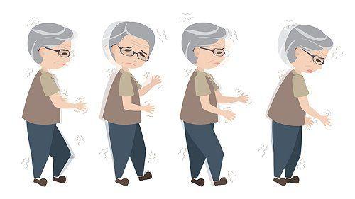La enfermedad de Parkinson podría comenzar en el intestino