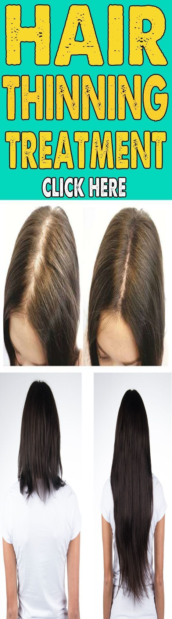 Female Baldness Cure #hairlossprevention #BaldnessCure
