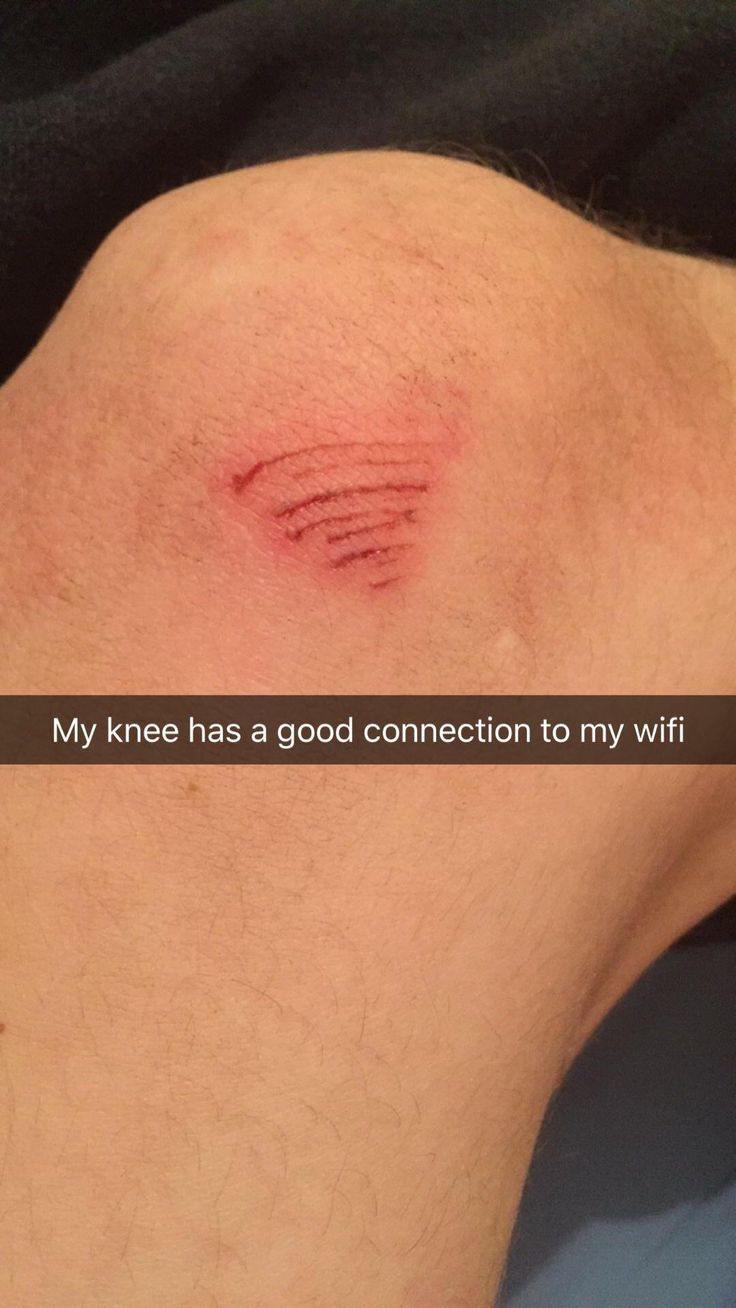 I once had a cut on my knee that looked like the wifi symbol
