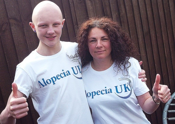 FUNDRAISER: Tom Halliday.16, and his mum Sally of Hook are raising money for Alopecia UK. Picture: Tony Saxton