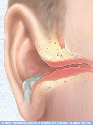 Ear Infection Home Remedies. This is actually really helpful. It has tips for soothing pain right away and for long term.
