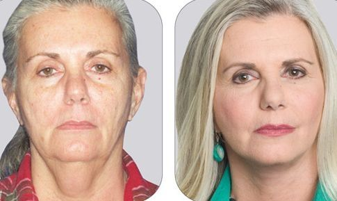 The Face Firming Gymnastics Guide For Ladies And Men To Accomplish A No Surgery Facelift