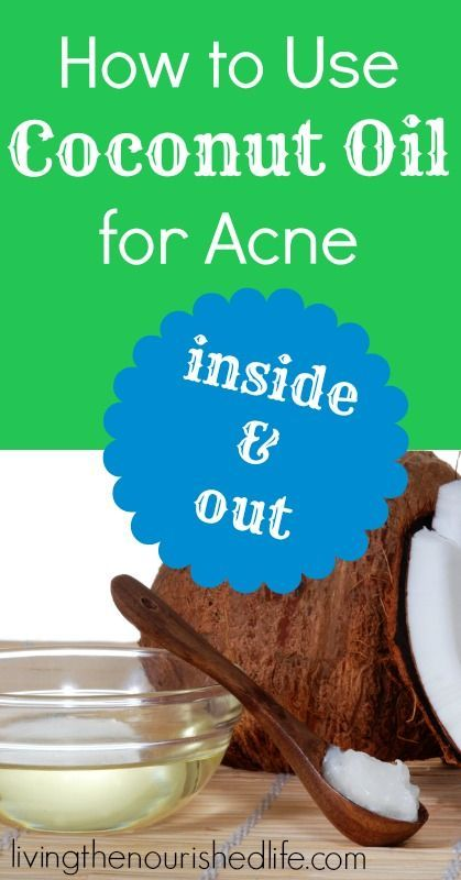 Coconut Oil for Acne - The Nourished Life // this is my favorite part of my skin routine! It is amazing!o