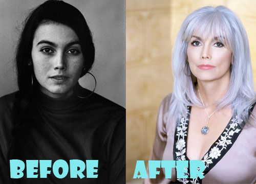 Emmylou Harris Plastic Surgery Before and After Picture