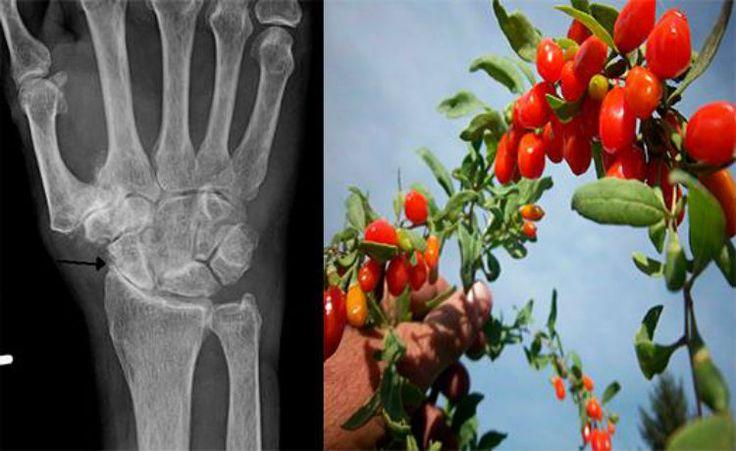 Artrite: conheça mais sobre a doença e veja como ter uma dieta anti-inflamatória
