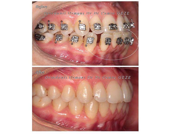 Primum non nocere! (Önce zarar verme!) Hipokrat Ortodontik tedaviler ortodonti uzmanı olmayan hekimler tarafından yapıldığında mevcut sağlıklı disleri maalesef kaybetme noktasına kadar gelinebiliyor! Biz hekimler mezun olurken verdiğimiz yeminde hastalarımıza önce zarar vermeyeceğimize dair söz veriyoruz! Öncesinde hatalı tedavi edilmiş olan bu fotoğraftaki vaka bana ortodonti uzmanı olmayan bir dişhekimi tarafından transfer hastasıdır. Alt kesici dişlerinin 4 ünü de travmaya ve kemik…