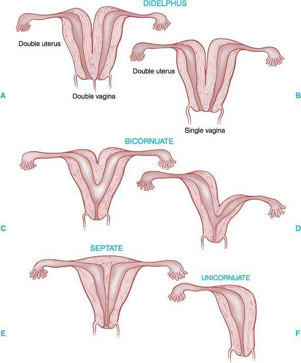 Double Uterus - no fusion of parameso. ducts Bicornuate - incomplete fusion Unicornuate - failure of 1 parameso duct to dev Septate - incomplete resoption