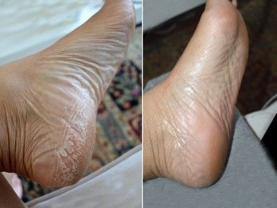 foot peel that actually works.  This is super gross, but i totally need to do it!