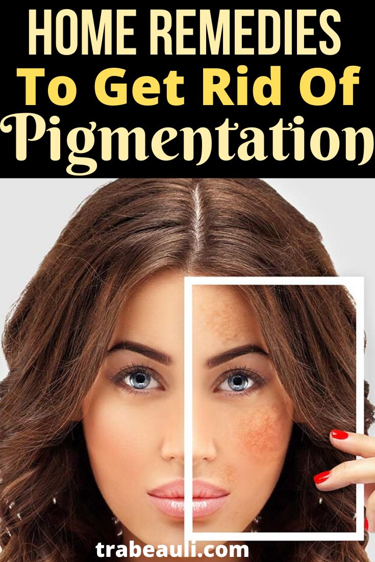 How to get rid of dark spots overnight with home remedies