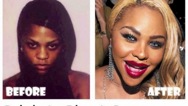 Lil Kim Before And After Botox