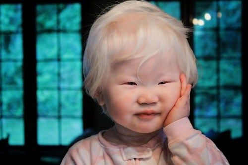 Asian girl with albinism.