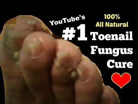 Home Remedy for Toenail Fungus & Athlete's Foot | Natural Fungus Killer by Nicoles Heart - YouTube
