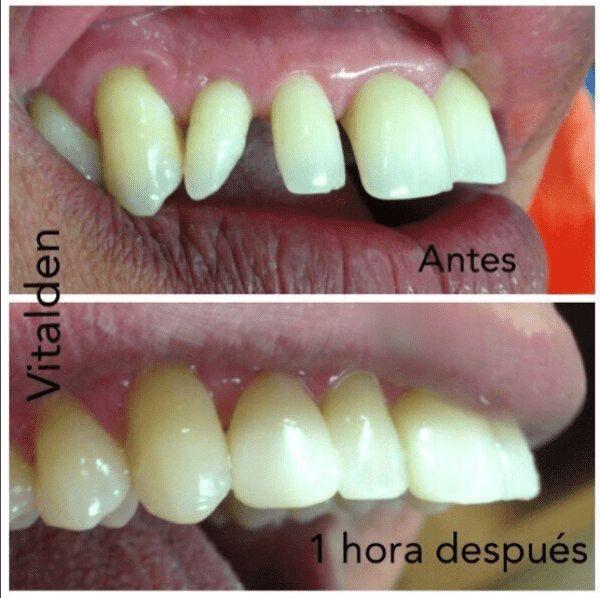 Carillas dentales : No es efecto fotográfico,es una técnica que cambia tu estética facial o dental en pocas horas, sus ventajas, procedimiento y cuidados. #carillasdentales #fundas #dentales #estetica #odontologia #tratamiento