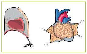 SEGUROS PRIZA te pregunta ¿Qué es el Derrame pericárdico ó Taponamiento cardiaco? El pericardio es una envoltura formada por dos capas que envuelve el corazón constituyendo su capa más externa. Entre estas dos capas hay una pequeña cantidad de líquido (intrapericárdico) que lubrica constantemente las superficies y permite que el corazón se mueva fácilmente durante la contracción. La acumulación de líquido entre estas dos membranas se conoce como derrame pericárdico.