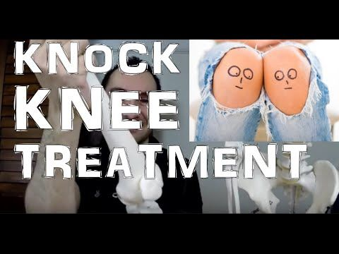 Best Knock Knees (Genu Valgum) Exercises For Fixing & Pain Relief Treatment - YouTube