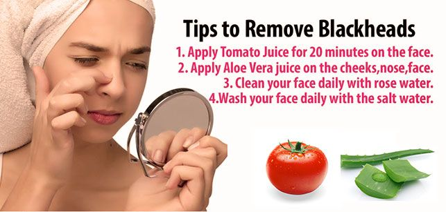 how to get rid of blackheads without damaging skin