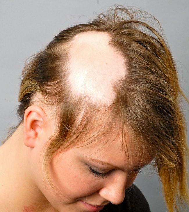 Saç Kıran İçin Mucizevi Tedavi Yolları Alopesi areata yani halk dilindeki adı ile saç kıran, saçların öbek öbek dökülmesine verilen addır. Ciddi saç sorunlarının arasında yer almaktadır. Stres, yanlış saç bakım ürünlerinin kullanılması, vitamin eksikliği gibi pek çok sebebe bağlı olabilmektedir. Saç kıranda saç hücreleri ölmektedir. Bundan dolayı da saçlar öbek halinde dökülmeye başlamaktadır. Saç …