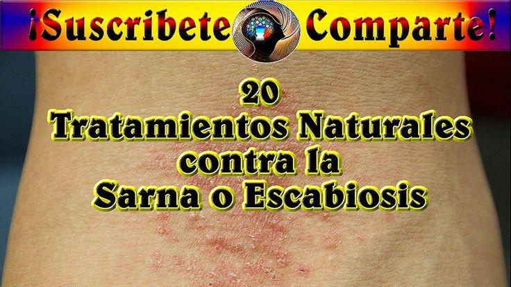 20 Tratamientos Naturales contra la Sarna o Escabiosis