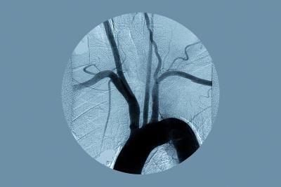 Como reverter os depósitos de cálcio em artérias coronárias | eHow Brasil