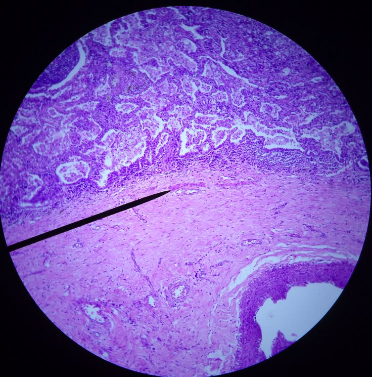 Squamous Cell Carcinoma - Lung