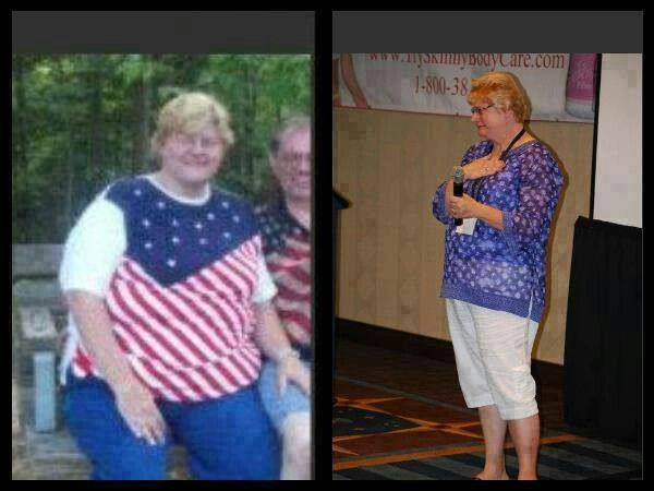 """Charlene is looking fabulous.  Here is her Skinny Fiber weight loss testimonial   She says: """"I used to weight 384 pds! Then I lost 100 on my own , then 50pds..then gain some back...then I was like at a stand still! No matter what I did I couldn't lose! My diabetes was way out of control and so was my blood pressure! I was going downhill and fast! My friend introduced me to Skinny Fiber and I was real leary at first...I tried almost everything out there! I said this time I ...have to succeed…"""
