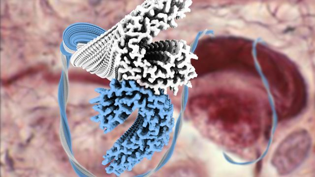 Researchers from the MRC's Laboratory of Molecular Biology, Cambridge, UK, have solved the structure of the dementia-causing 'tau' protein in unprecedented detail.