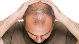 Hair Growth Center is the best hair restoration and hair transplant clinics in London, UK. Our expert team performs FUT and FUE hair transplant procedures! http://hairgrowthcentre.com/