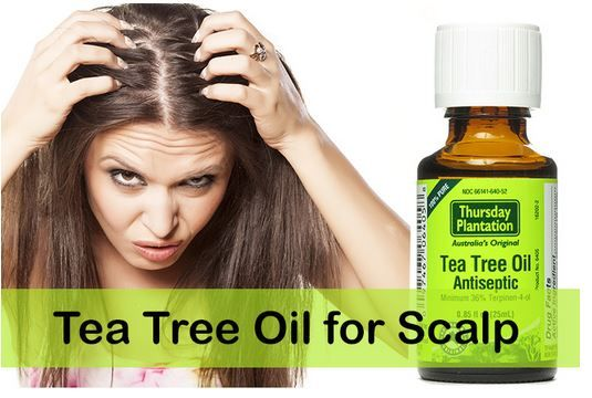 Tea tree oil home remedy for scalp acne