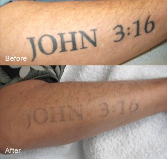 40 Best Hand Tattoo Removal Images On Pinterest Arm