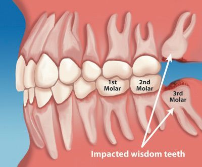 Wisdom teeth grow in at the back of the mouth, behind your molars ...