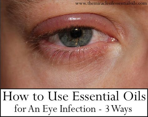Eye infections, caused by bacteria or viruses can be treated naturally at home. Learn how to use essential oils for eye infection, blepharitis or eye mites in a safe and effective manner.