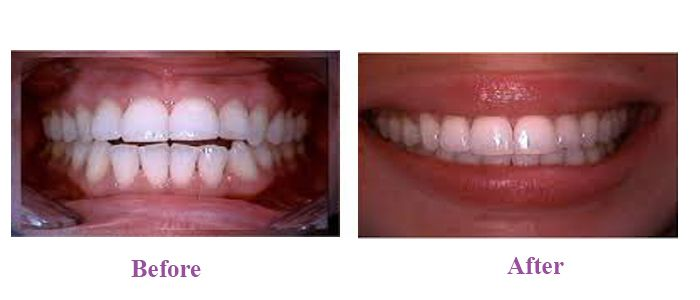 Discover what Invisalign brings to you!
