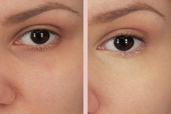Put Baking Soda Under Your Eyes And The Results Will Be Amazing! -