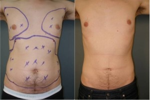 Belly Liposuction Before and After Photos