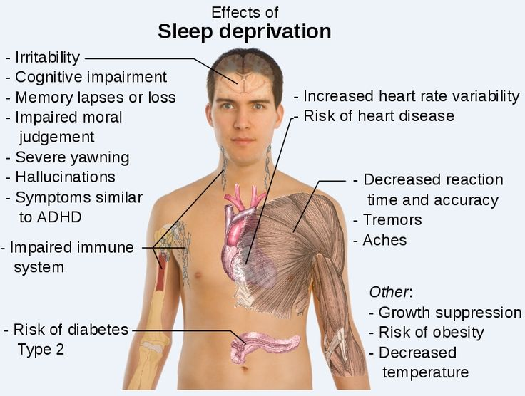 How to Recognize Sleep Deprivation Symptoms