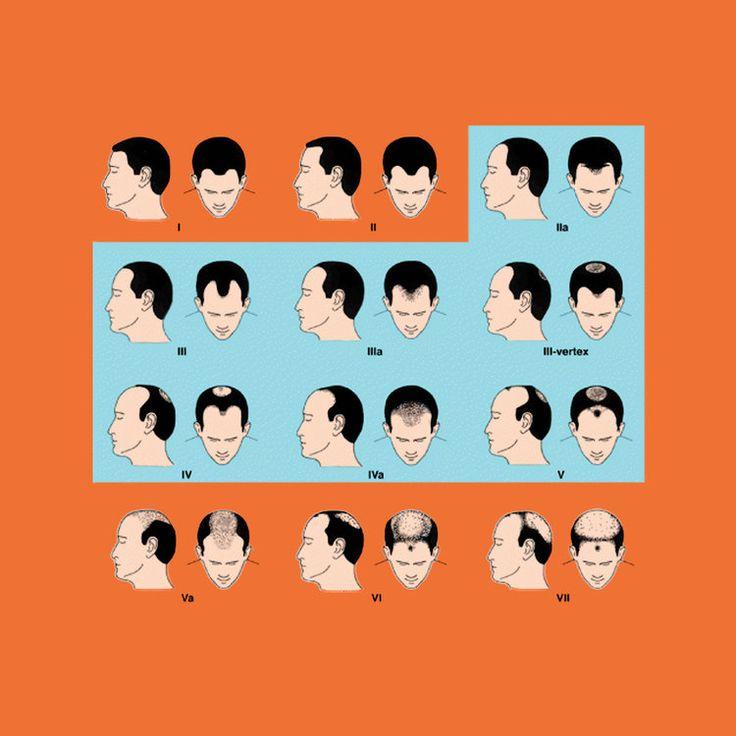 More Hair Naturally — Men's Hair Loss Education