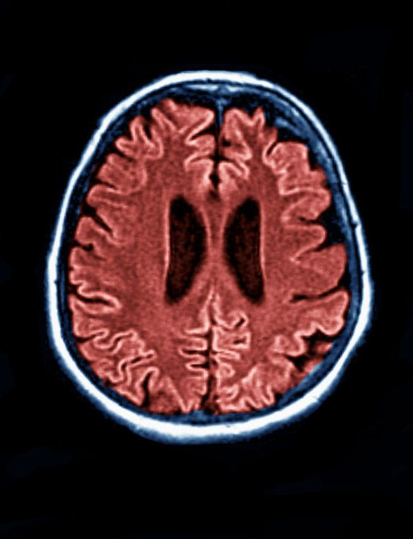 Abnormal Proteins Discovered in Skin of Patients With Rare Brain Disease