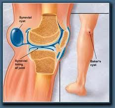Older adults might be able to stave off arthritis knee pain with fiber | Reuters