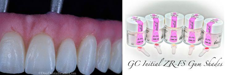 GC Zr -Fs Gum Shades