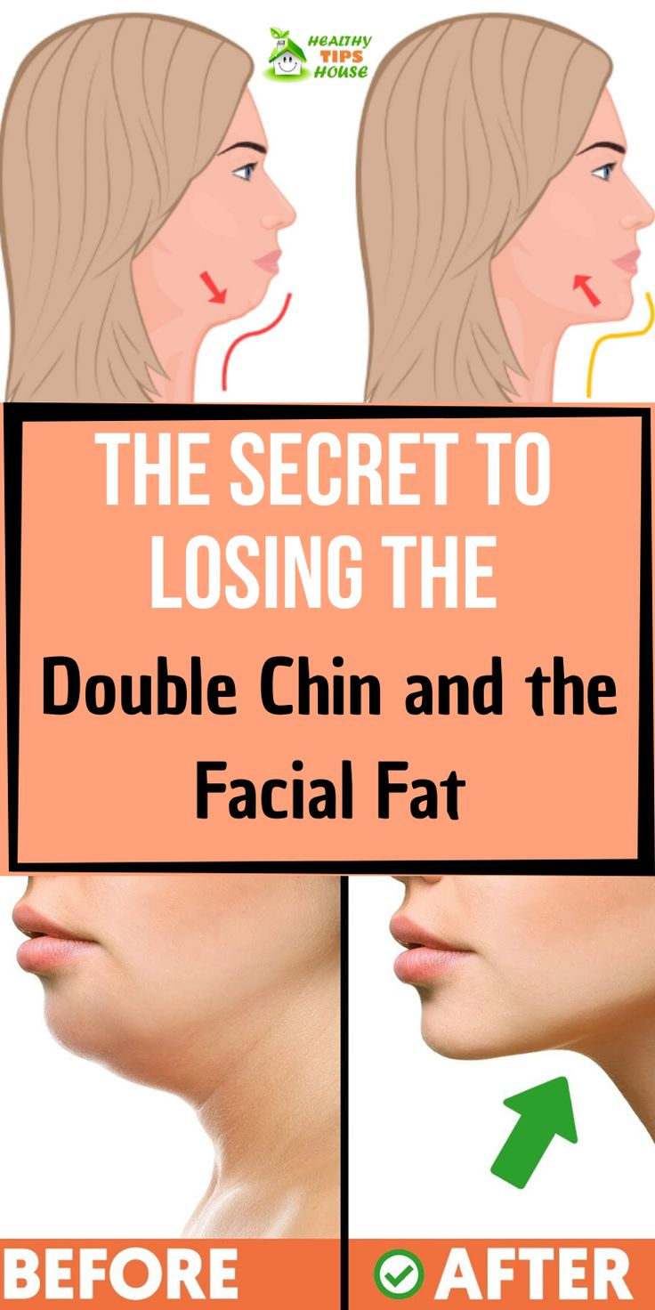 Get rid of double chin naturally double chin chin