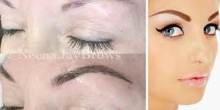 http://doctorbrows.ca - Moncton, NB    What IS microblading? Microblading is a new and innovative semi-permanent makeup method that mimics the natural feathering appearance of brows. By using hair-like strokes drawn directly into the skin, a brow artist can create beautifully custom-designed brows that last between 1 to 3 years, depending on your skin type, your activities, and natural pigmentation.