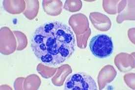 Macrocytic Anemia - Larger than normal size