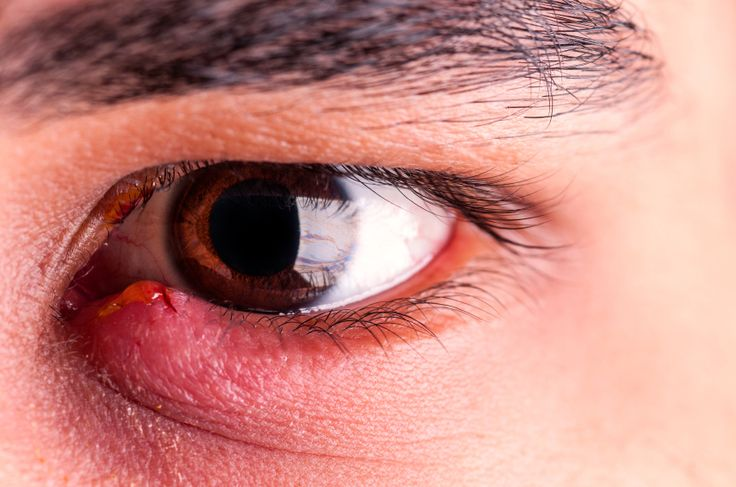 Ouch! If you've ever had a stye in your eye, you know how painful they can be. Find out what causes them -- and if what you have is actually a stye or something else.