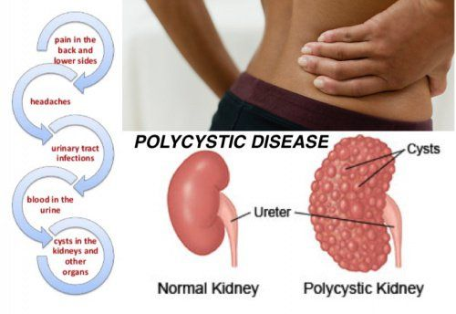 What You Should Know About Polycystic Kidney Disease