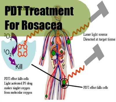 Best Photodynamic Therapy Treatment For Rosacea