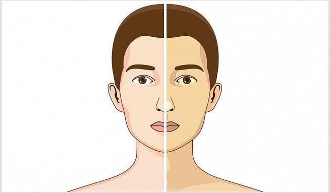 Zbarvení kůže izápach zúst ukazují na poškození jater. Potvrdí je jaterní testy - Vitalia.cz